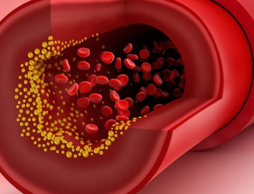 Cholesterol – Why Is It Essential For Living?